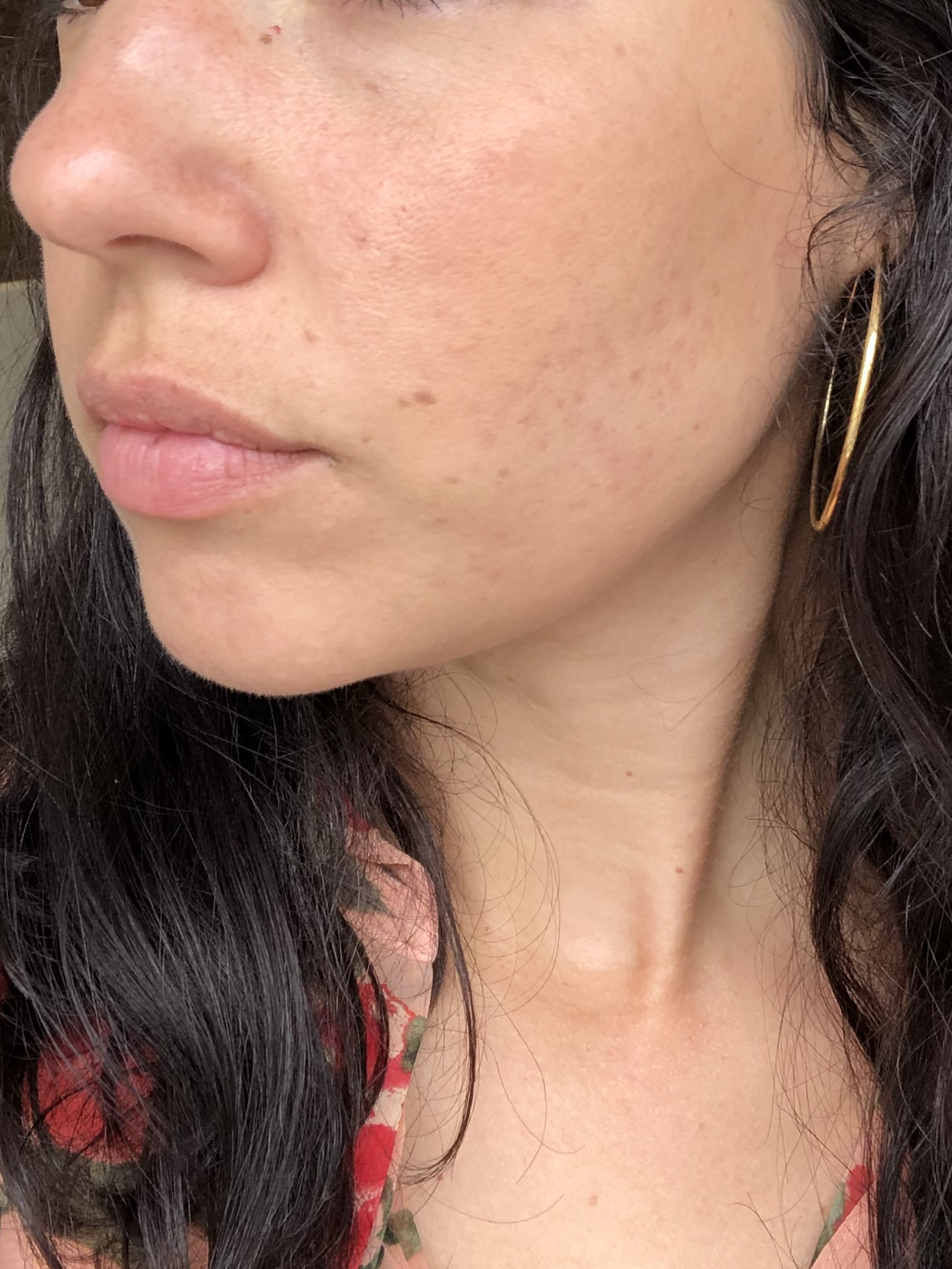 clear skin after treatment