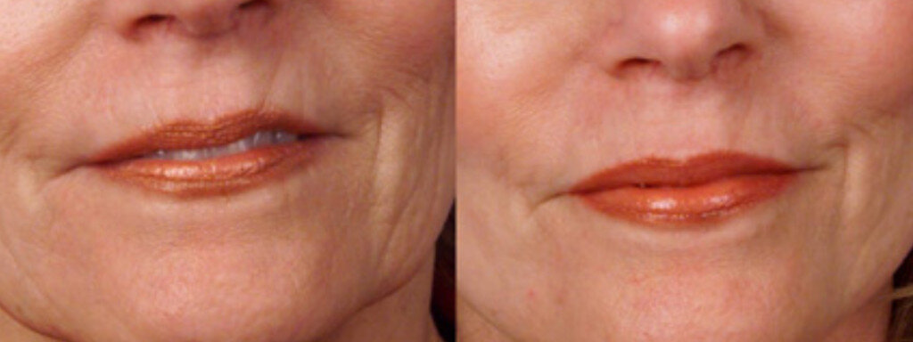 dermaroller-wrinkles-1-1024x384.jpg