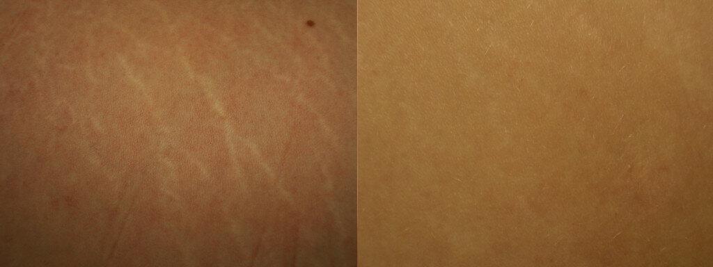 dermaroller-stretch-marks-2-1024x384.jpg