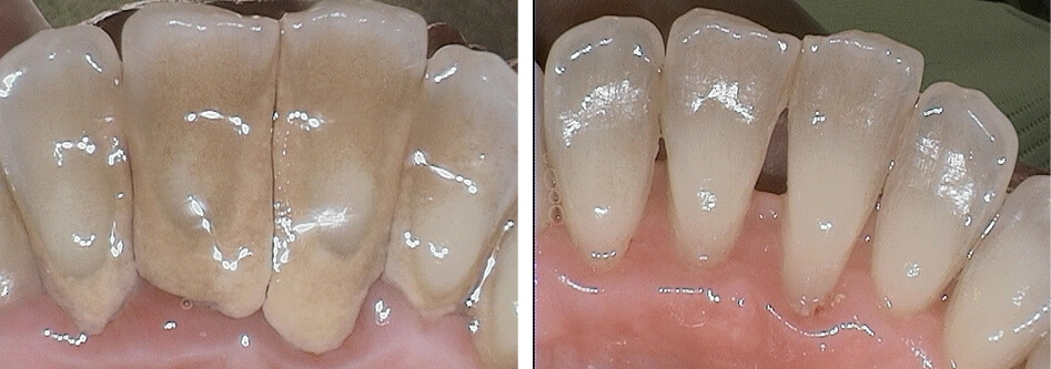 Before and after dental cleaning