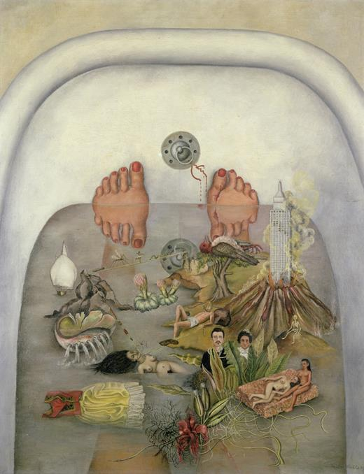 What the water gave me , 1938, Kahlo Frida. Frida Kahlo is famous for using her art to convey her life experience of chronic neuropathic pain. She experienced allodynia so a warm bath caused her to feel burning pain.