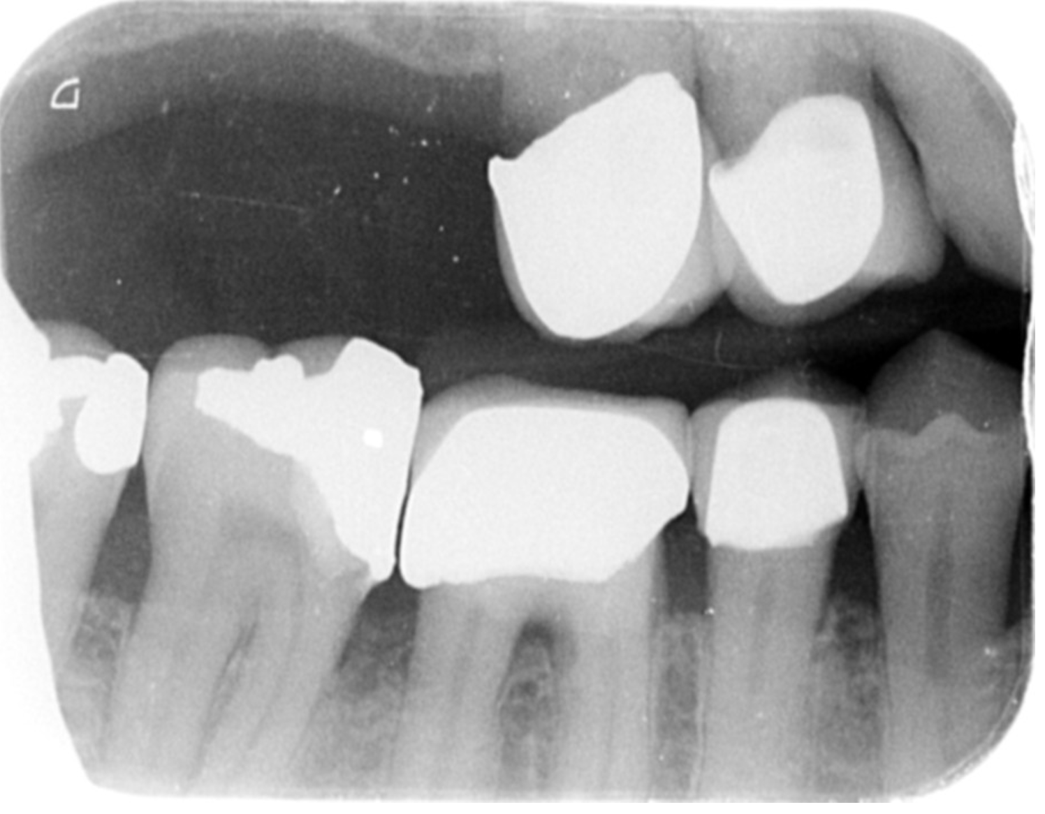 RHS BW. Grade – 2, incompletely scanned in LR8 area.