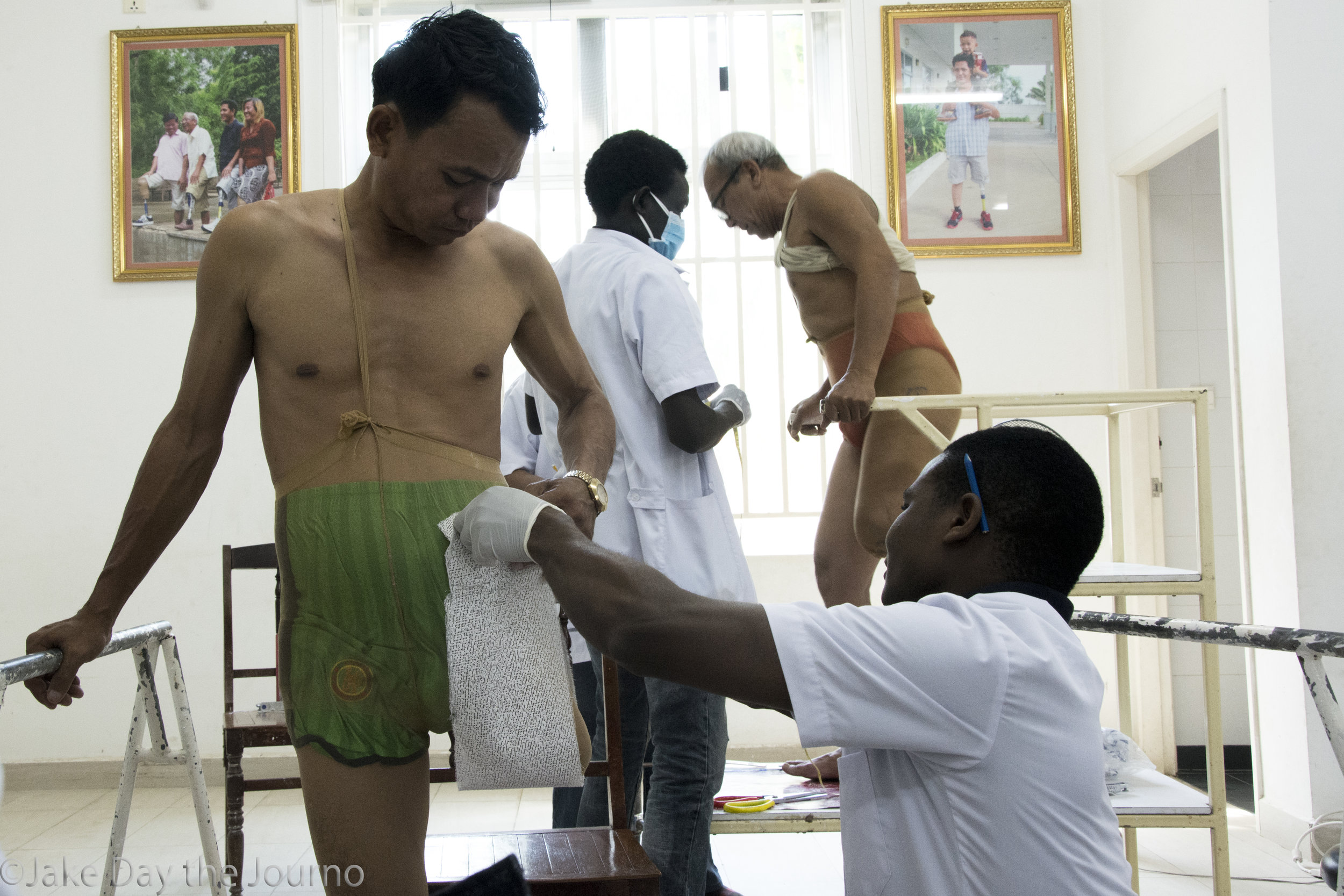 (Hem Heng, Tombura Joseph Kenyi, Chim Samang, Samuel Mkomera) Two second year students practice plastering on two local amputees on examination day at the Exceed Cambodian School of Prosthetics and Orthotics on 16/01/18 by Jake Day.