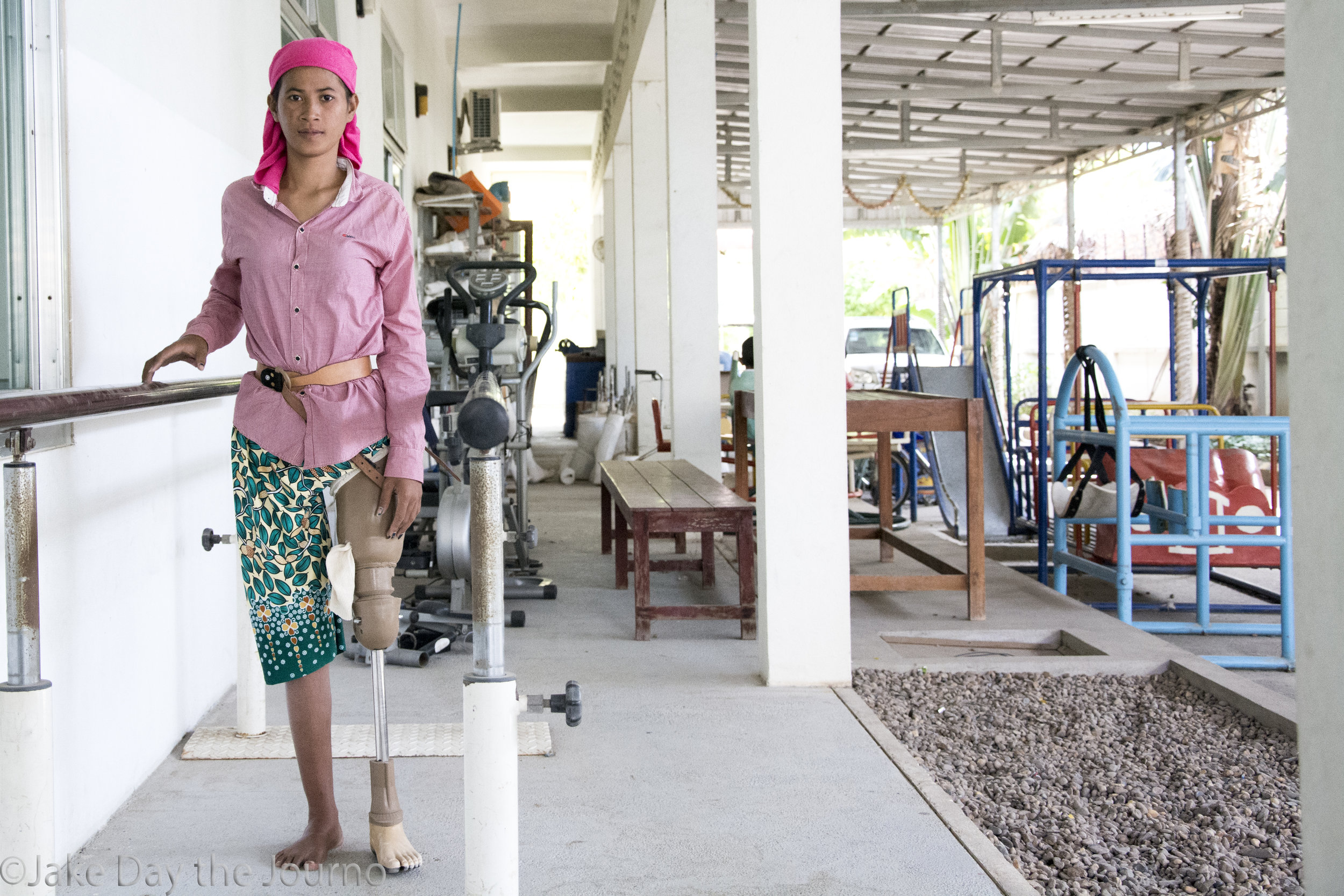 Choun Srey lost her leg after a car accident. She pauses while practicing her gait at the Exceed Cambodian School of Prosthetics and Orthotics on 15/01/18 by Jake Day.