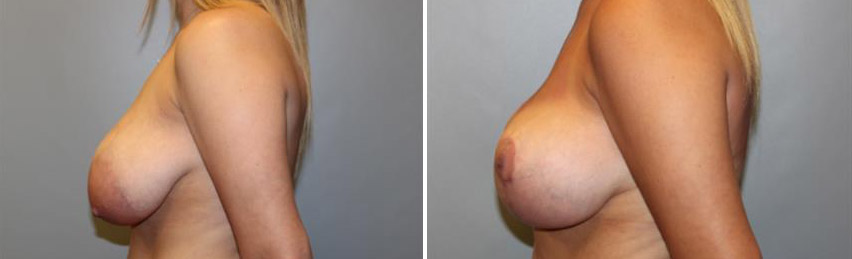Breast Lift • Without Implants