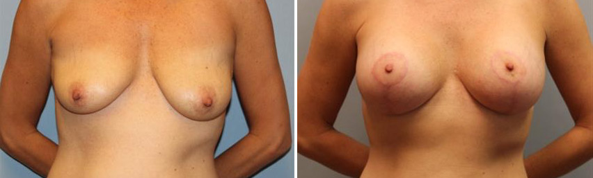 Breast Lift • With with 300cc Silicone Implants