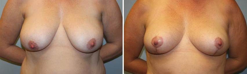 breast-reduction-before-after-raleigh-1.jpg