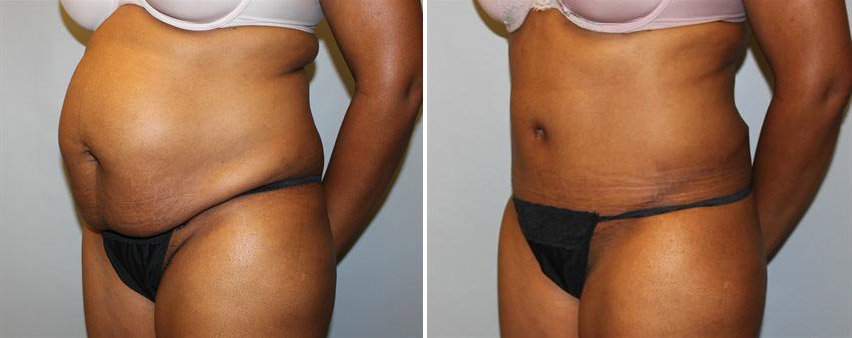 tummy-tuck-before-after-raleigh-6.jpg