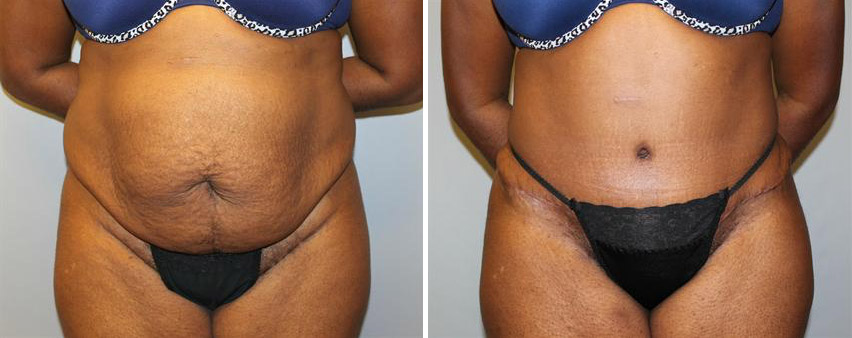 tummy-tuck-before-after-raleigh-3.jpg