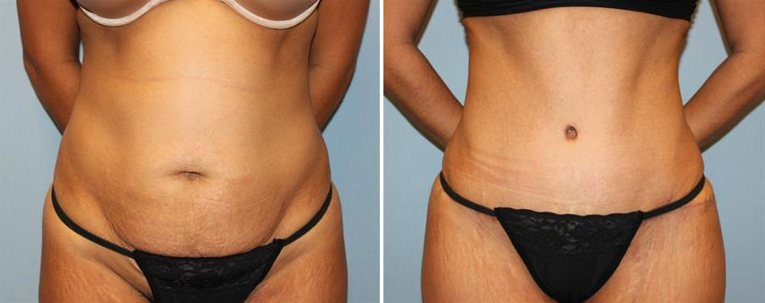 tummy-tuck-before-after-raleigh-5.jpg