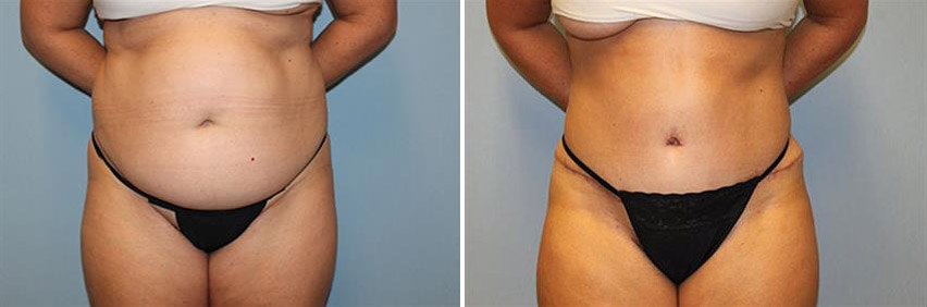 tummy-tuck-before-after-raleigh-18.jpg