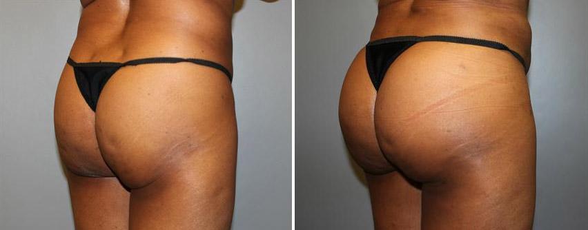 brazilian-butt-lift-before-after-raleigh-2.jpg