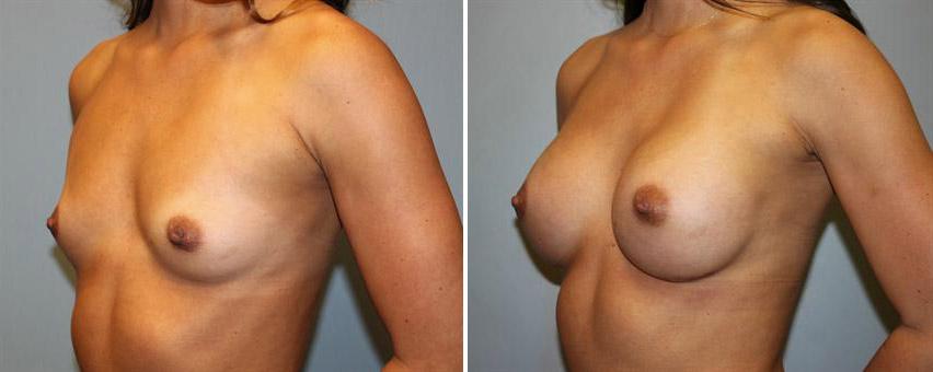 breast-implants-before-after-raleigh-5.jpg