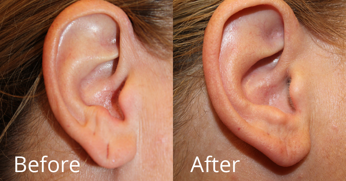 Earlobes stretched from heavy earrings