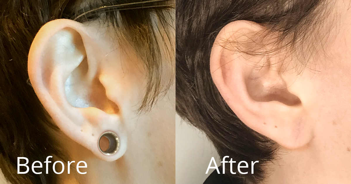 Earlobes stretched from gauging