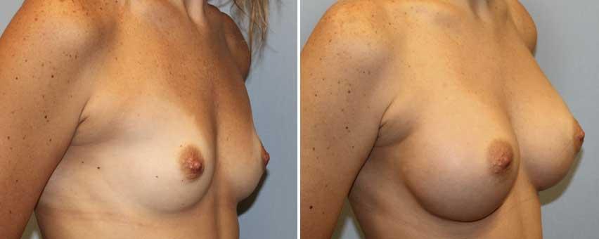 dr-jeremy-pyle-breast-augmentation.jpg