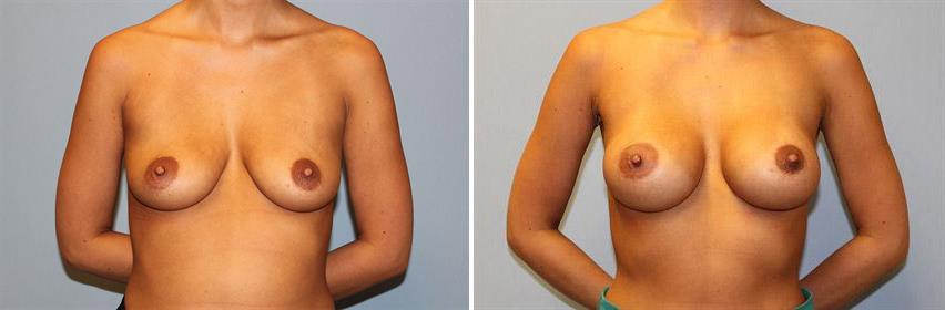 breast-implants-before-after-raleigh-15.jpg