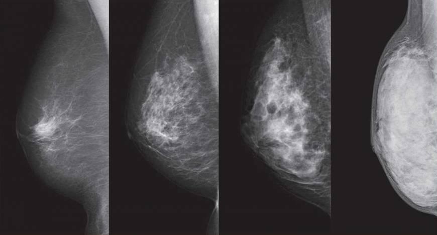 n-breastcancer-a-20171026-870x467.jpg