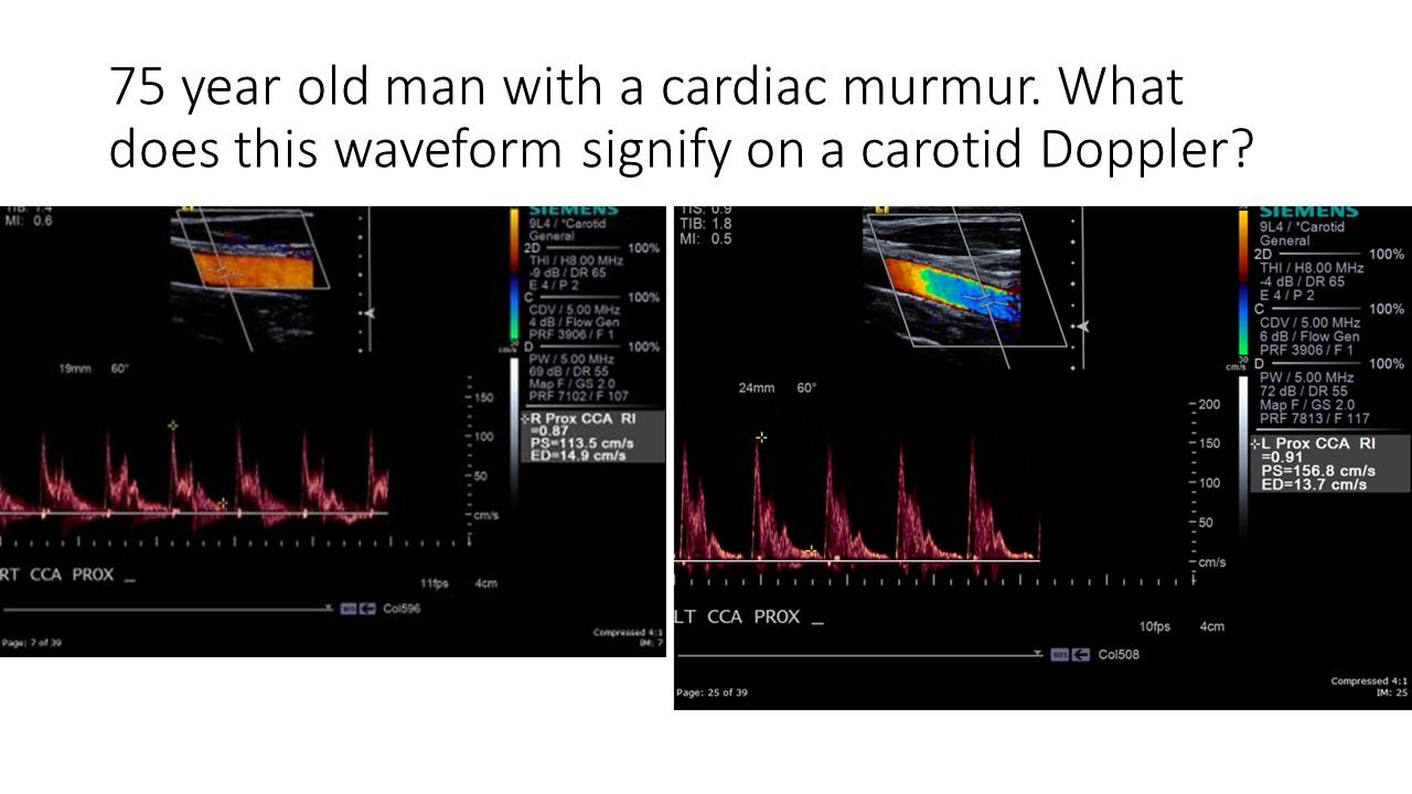 aortic regurgitation.jpg