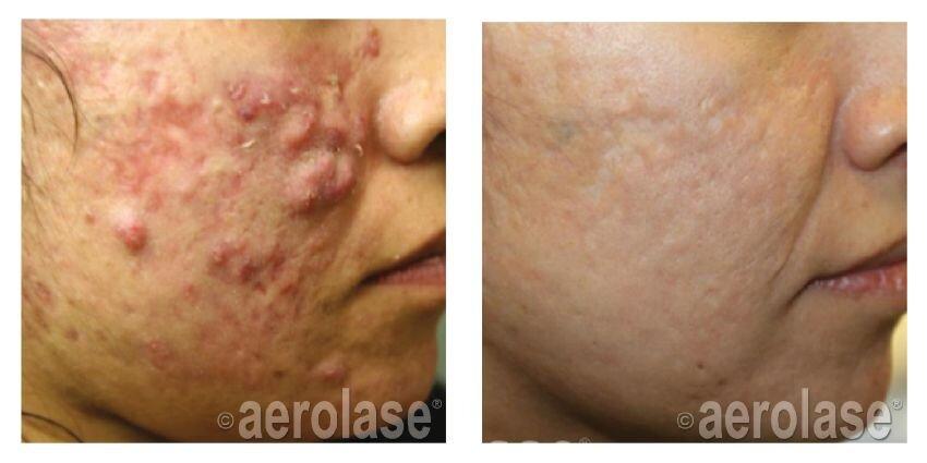 Acne Treatments Eliminate Active Acne Cedar Grove Nj Nj Health Hub