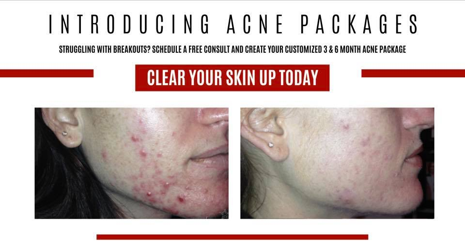 Acne Package