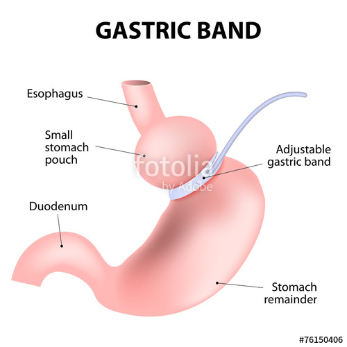 Image of Gastric Band Implant