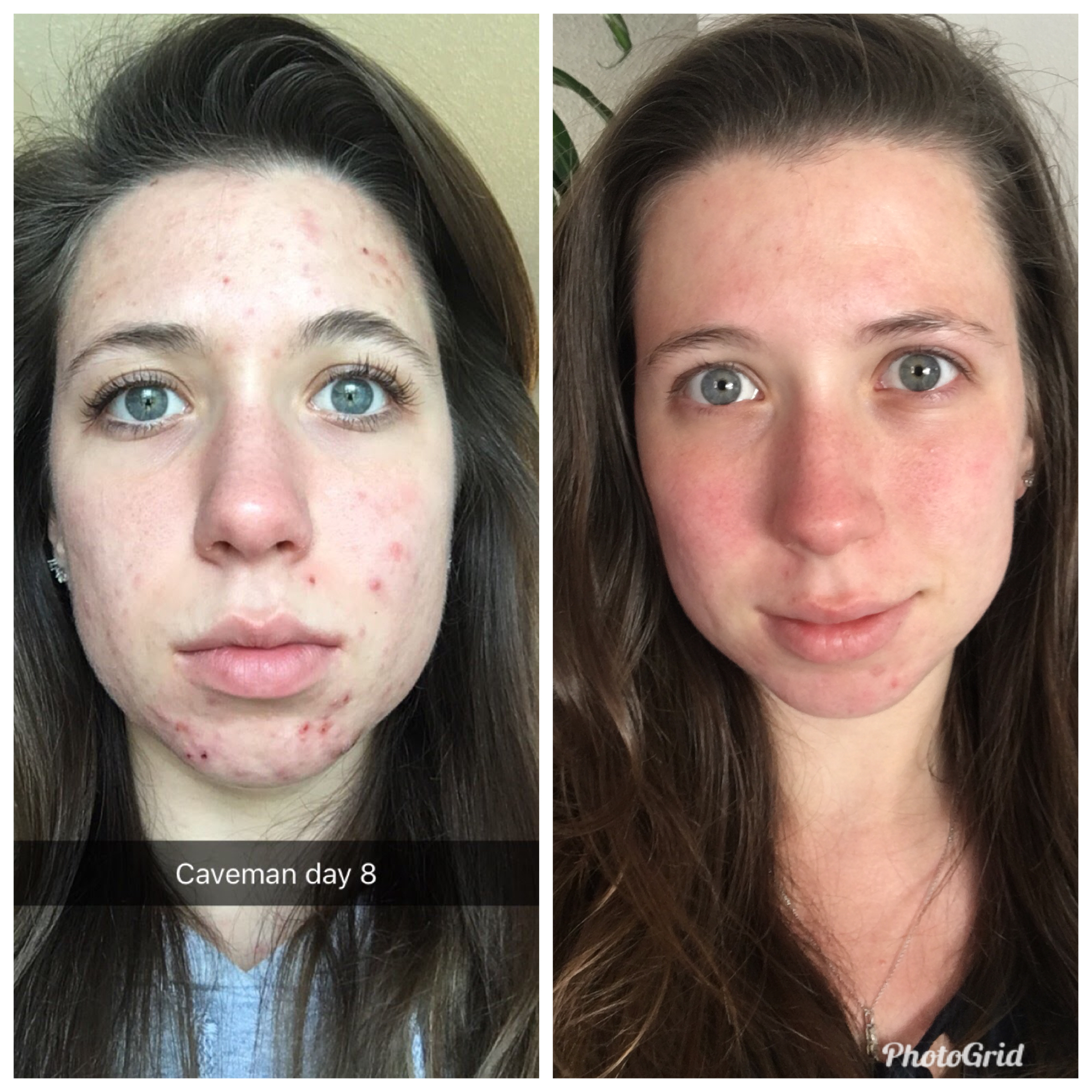 Left: February 2017; Right: May 2018 Both pictures are without makeup (I'm wearing only mascara in the left picture) to show a fair comparison!