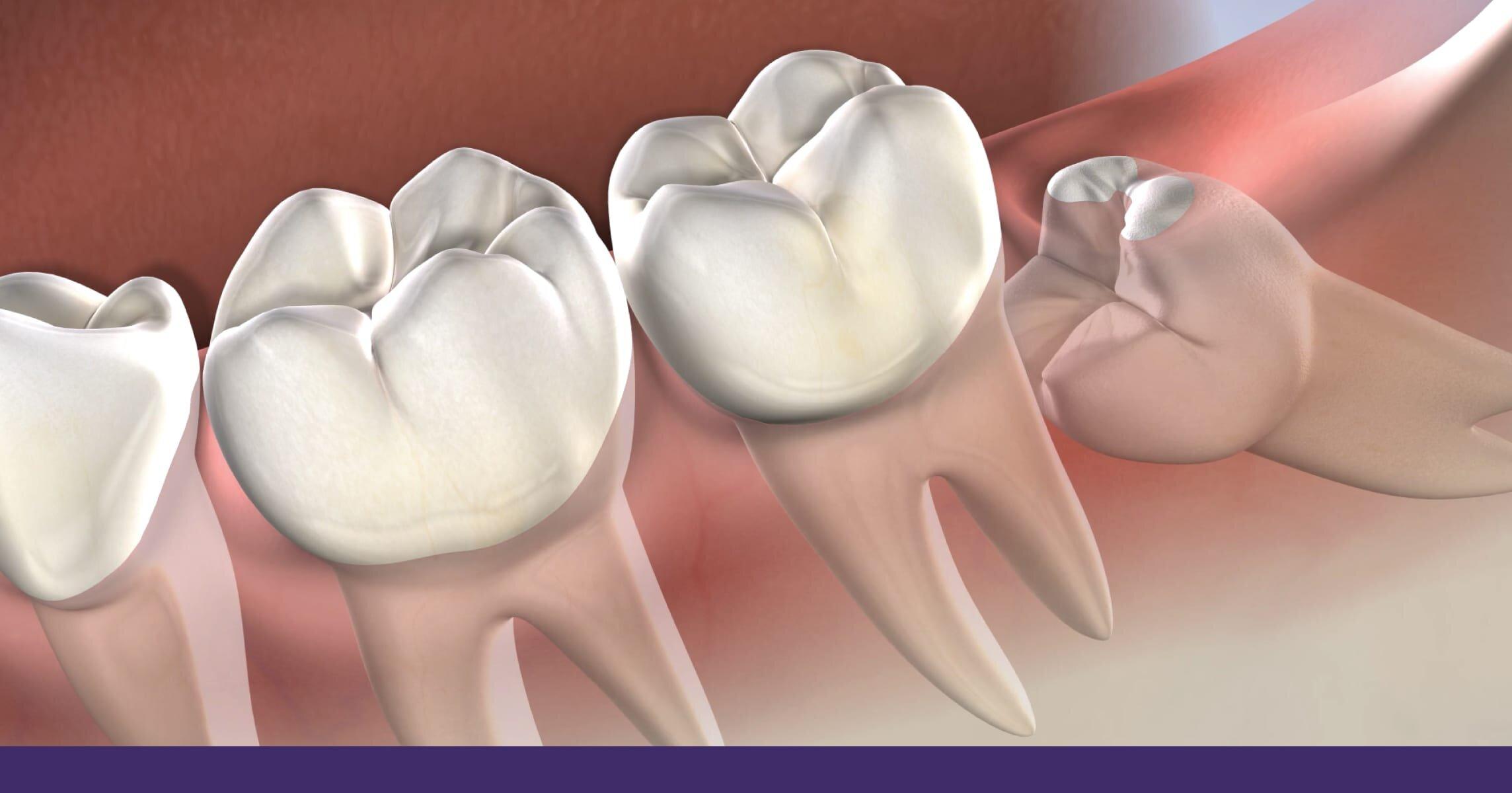 wisdom-teeth-removal-procedure-santa-fe-nm.jpg