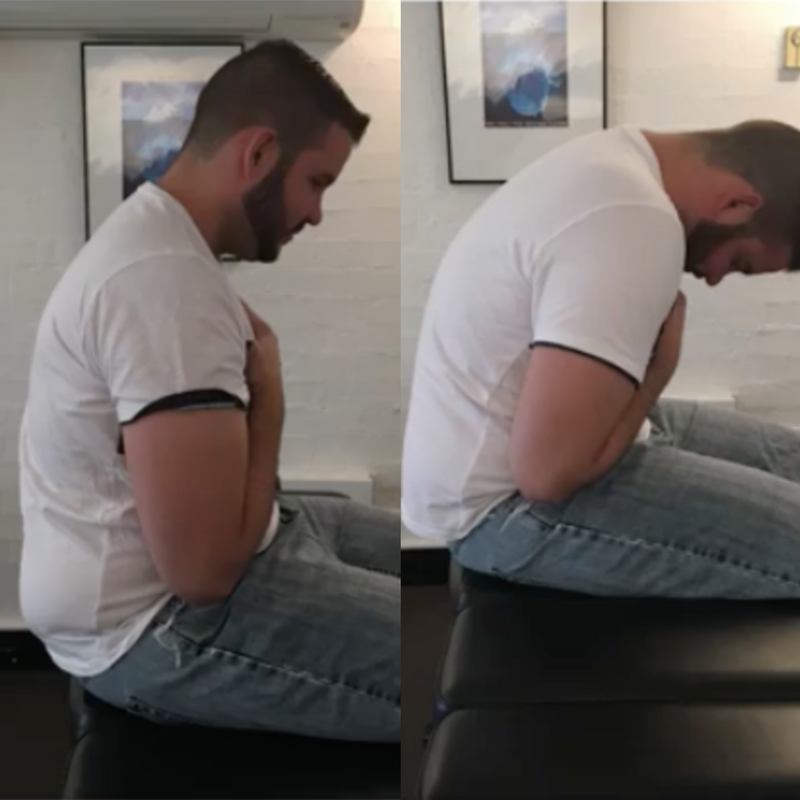 Dramatic improvement in restriction of full spine flexion