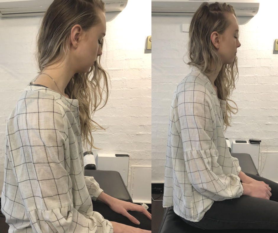 Improved forward head posture