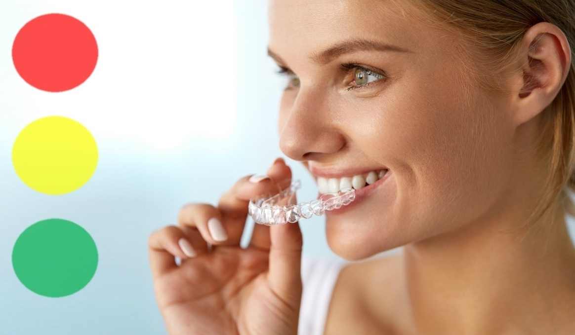 Whitening teeth ivanhoe alphington fairfield