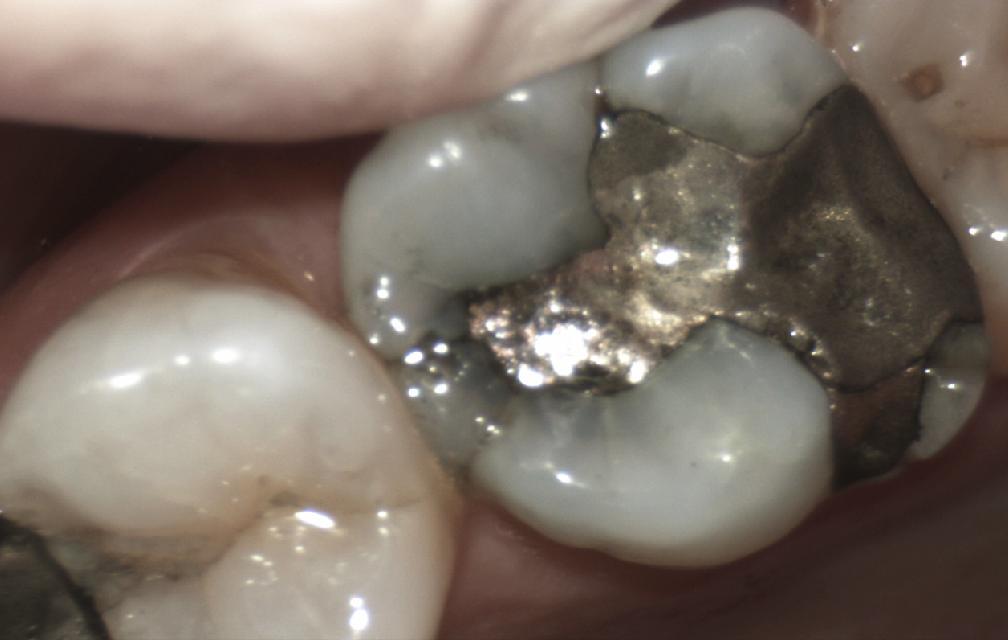 Dental amalgam removal