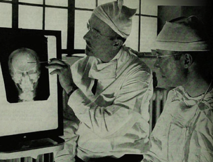 Dr. Walter Freeman and Dr. James Watts examine an x-ray before a psychosurgical procedure.