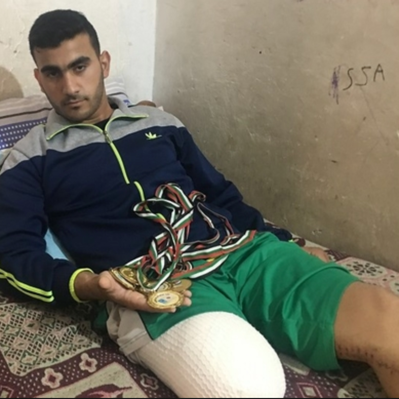 Palestinian cyclist Alaa Al-Dally, who was shot in the leg during the first Gaza border protest on March 30. He was not allowed to leave Gaza for treatment and consequently had his right leg amputated. Alaa was practicing to participate in the upcoming Asian Game with Palestinian athletes.