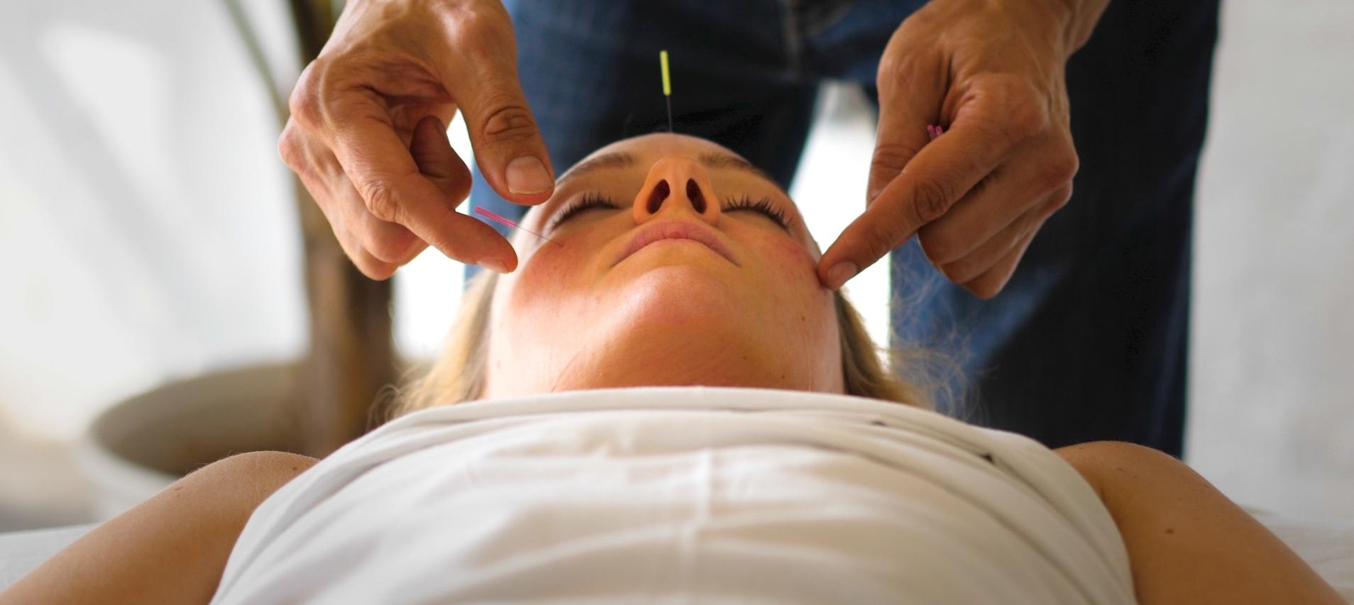 Acupuncture for Migraine_.jpg