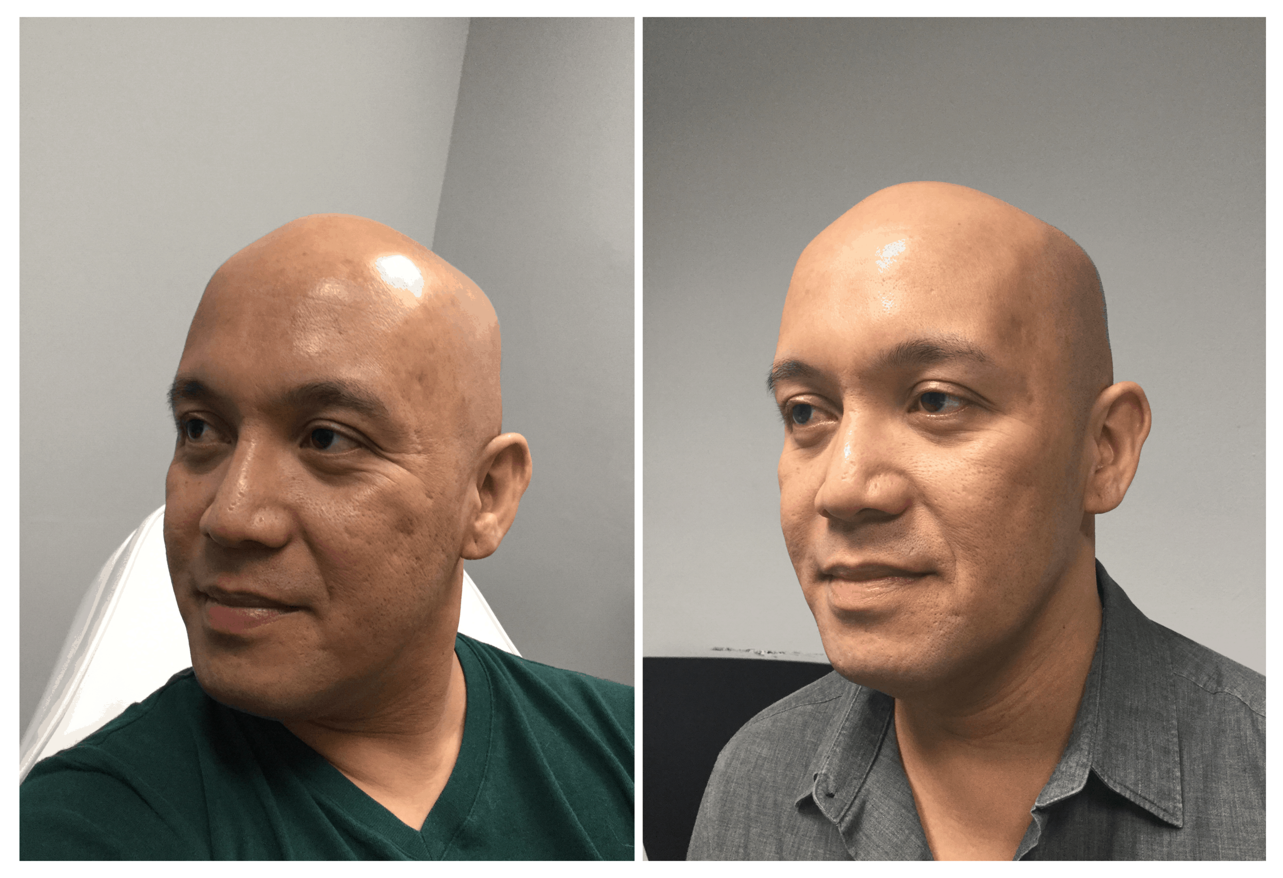 BeforeAfter_microneedling.png