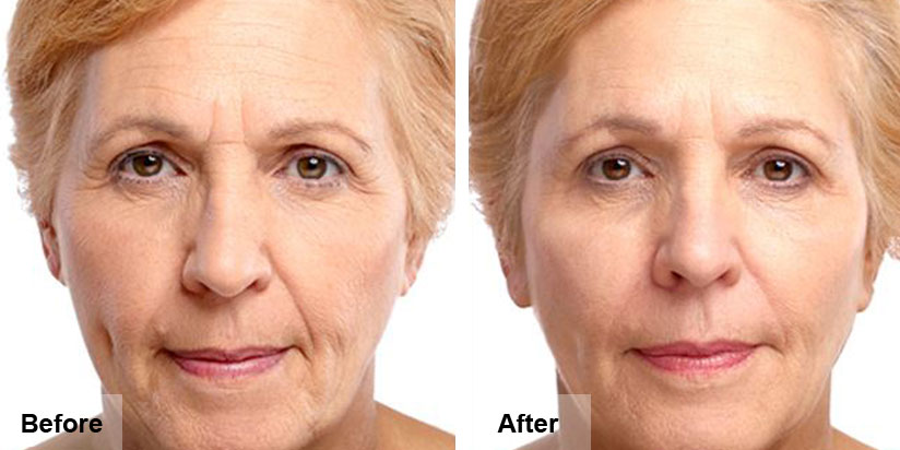 botox-before-after-4.jpg