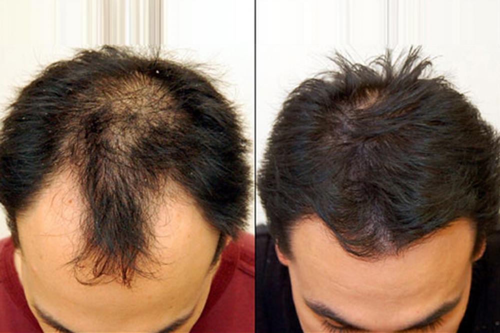hair restoration.jpg