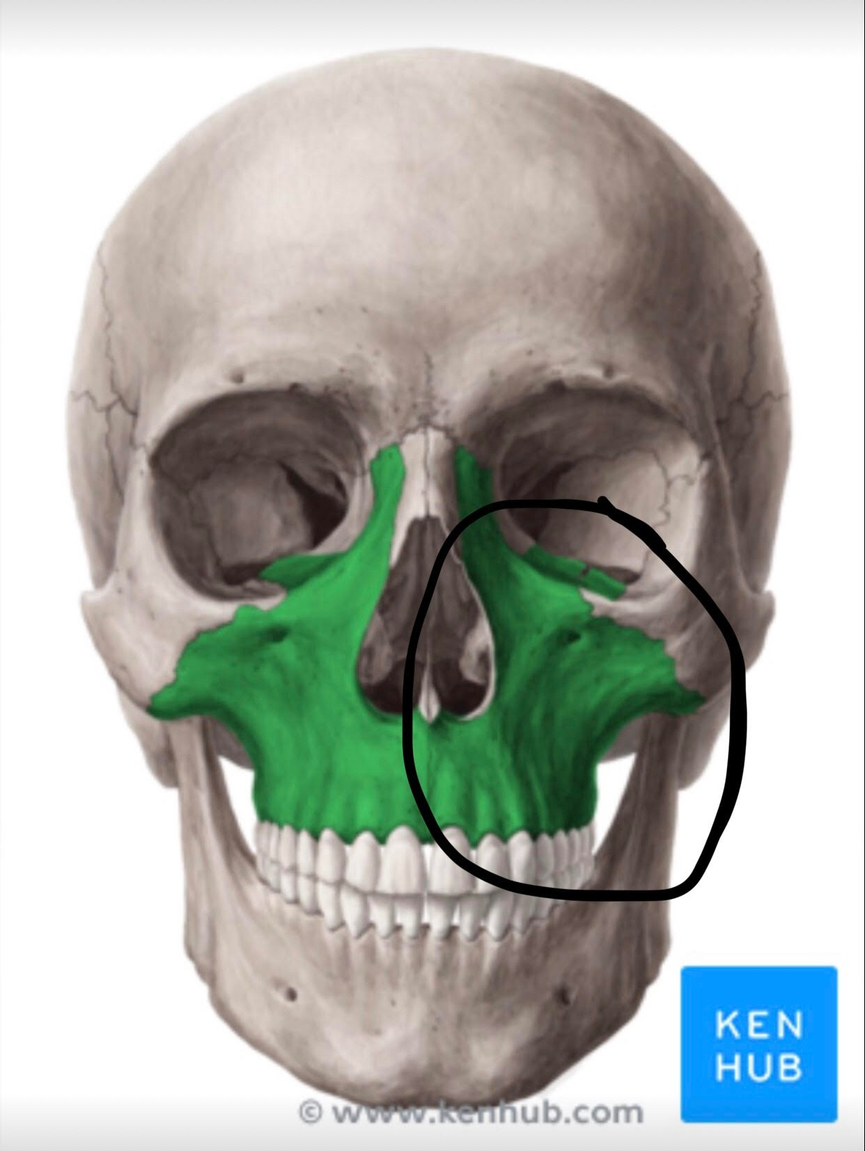 - Off we go. The hospital does a CT scan. I didn't break my nose, my eye socket is ok, but I definitely shattered my maxilla bone. That is the bone right beside your nose, mid-cheek area. See the attached photo of the skull, the maxilla bone is highlighted in green.