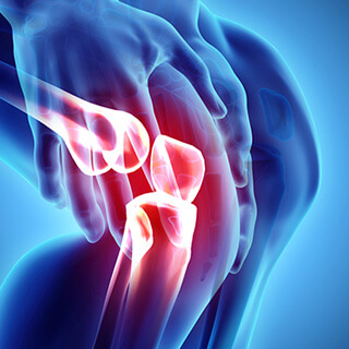 CS-Knee-Osteoarthritis.jpg