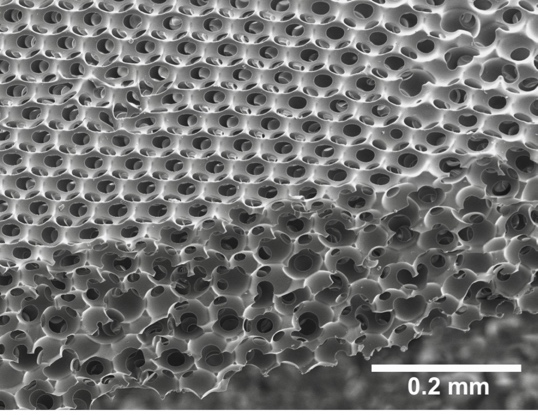 Healionics'  Sphere Templated Angiogenic Regeneration   (STAR)  biomaterial