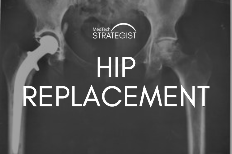 IMH Hip Replacement.png