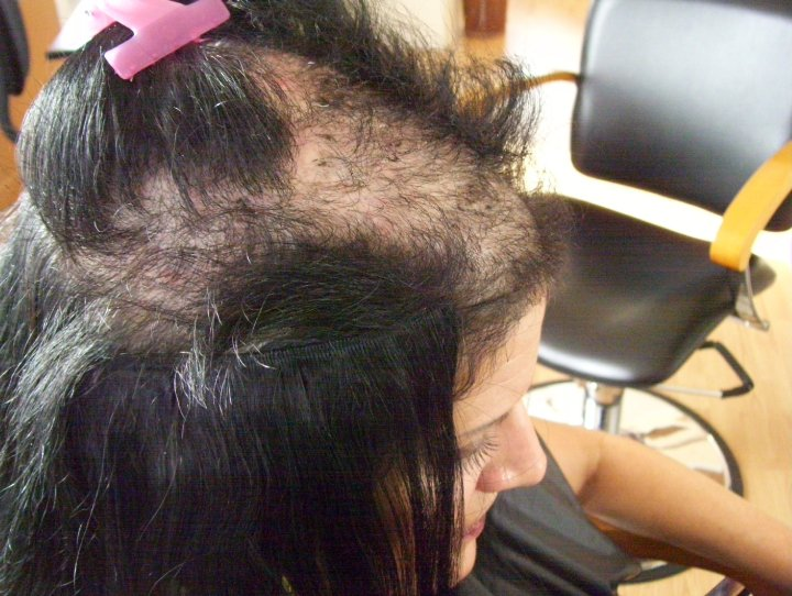 Severe-alopecia.jpg