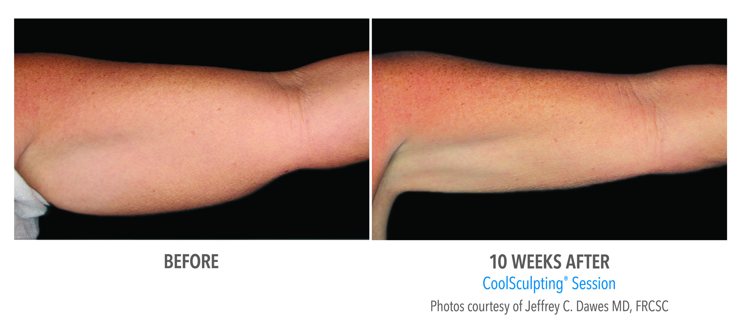 before and after arm.jpg