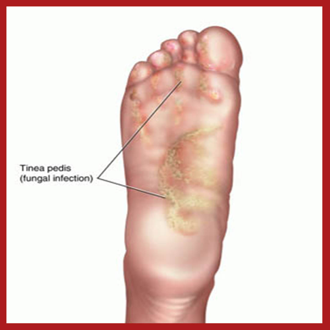 Athlete's Foot Treatment — Santa Maria Podiatry Clinic on foot odor, foot index, foot and ankle, foot pain, foot structure, foot schematic, foot problems, foot regions, foot type chart, foot outline, foot assessment form, foot tendons, foot cartoon, arches of the foot, joints of foot, foot parts, anatomical terms of location, foot muscles, foot side view, foot map, foot bones, foot drawing, fifth toe, foot toes,