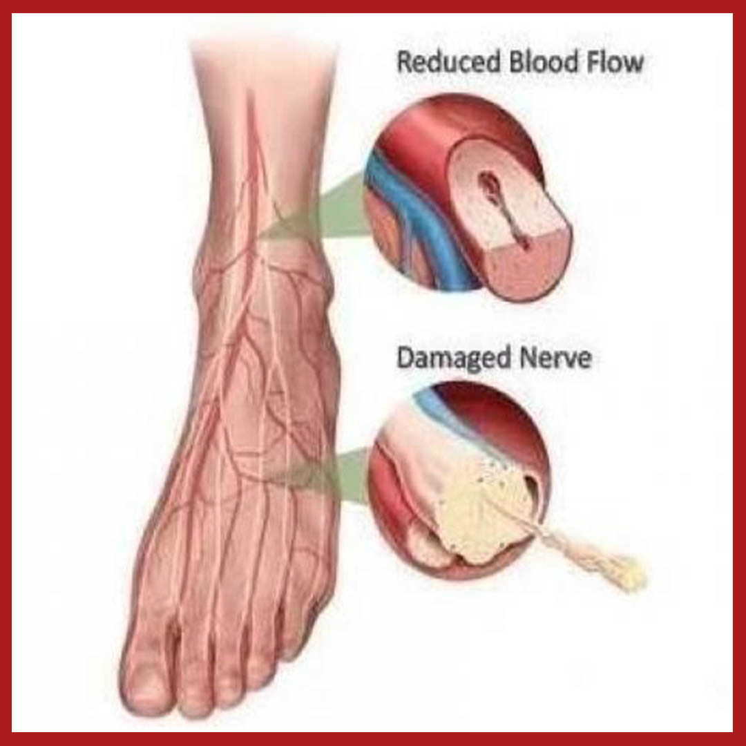 Diabetic Feet Treatment Santa Maria Podiatry Clinic