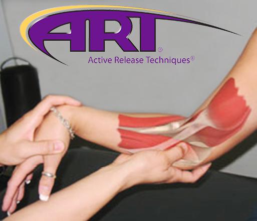 ART arm.png