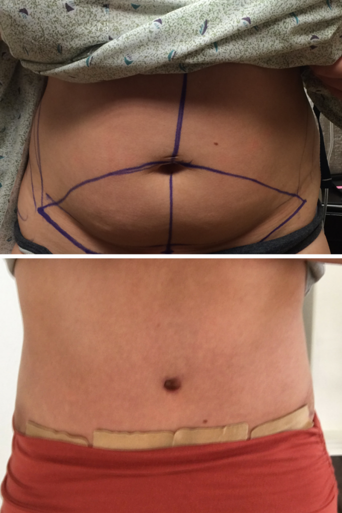 Tummy Tuck Blog Post