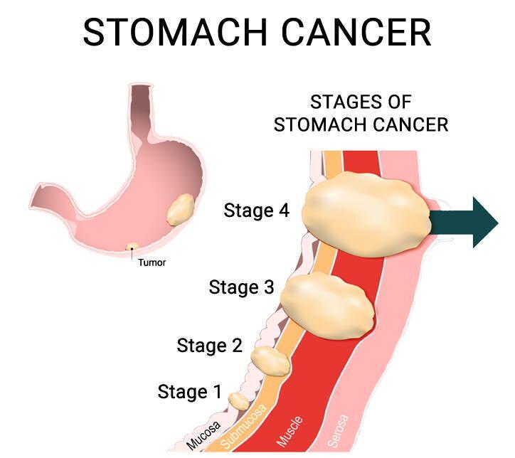 abdominal cancer detection