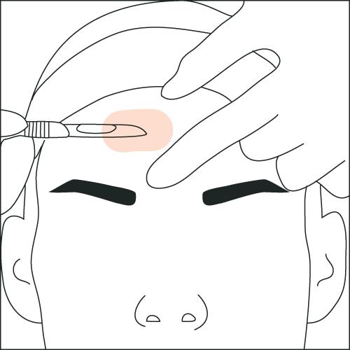 skin-care-dermaplaning.png